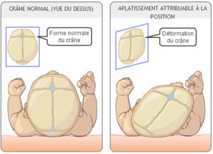 aplatissement de la tête du bébé, comment traité une plagiocéphalie en ostéopathie?